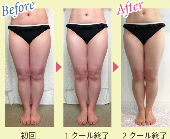Before & After 写真2