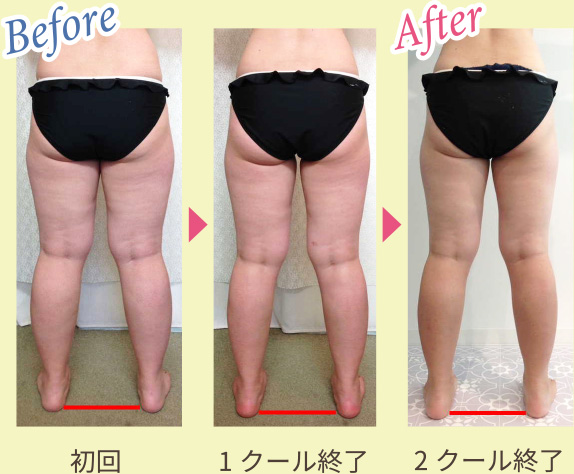 Before & After 写真3