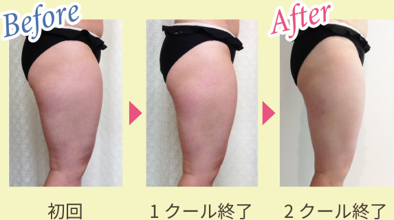 Before & After 写真5