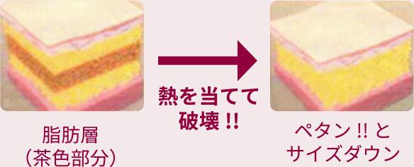 脂肪層に熱を当てて破壊!!→ペタン!とサイズダウン