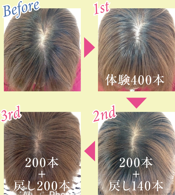 Before & After 写真1