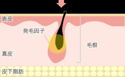 HS法 イメージ